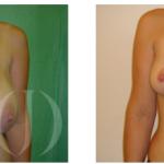 ¿Por qué es importante una reducción de pechos?