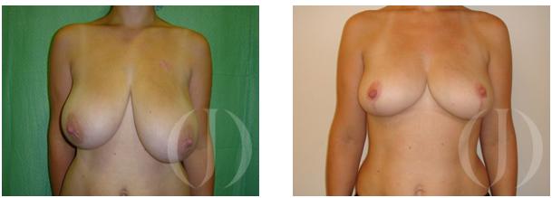 mamoplastia de reducción de pechos