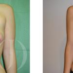 La problemática de los pechos asimétricos