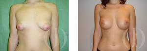asimetria pechos