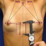 ¿Cuál es la mejor vía para implantar las prótesis en un aumento de pecho?