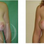 Recupera la forma de tu pecho sin implantes