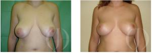 elevacion de pecho sin protesis