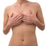 Los resultados de una mastopexia o elevación de pechos
