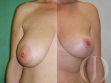 Aumento de mamas Anatómicas