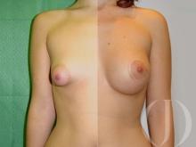 Aumento de mamas redondas