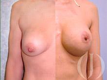 Secuelas mamarias