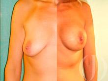 Elevación Mamaria con Prótesis