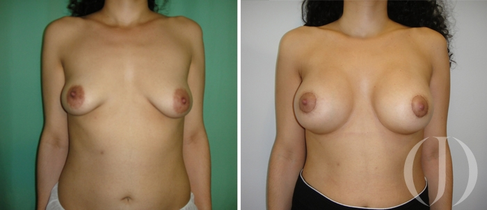 Aumento mamas tubulares
