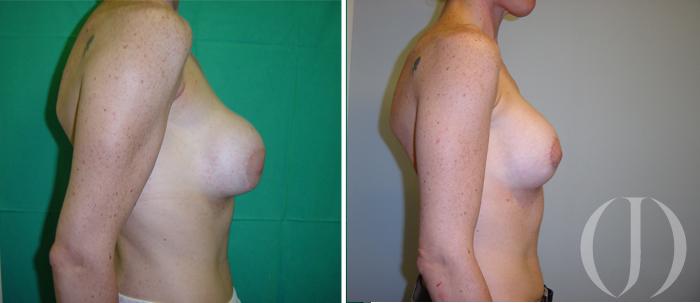 secuela mamaria