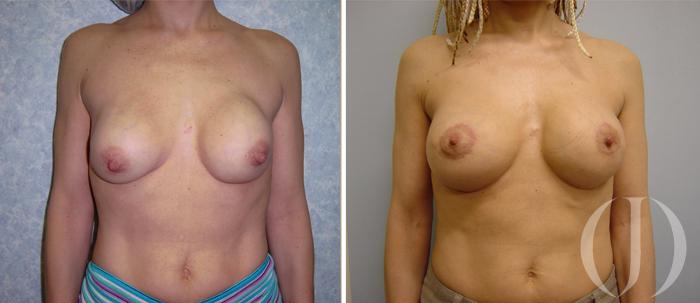 secuela mamaria - contractura capsular