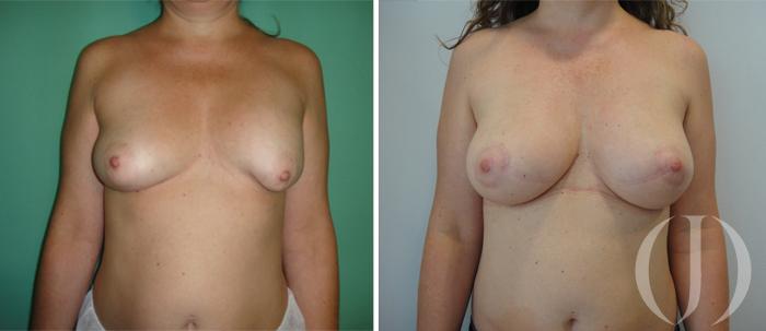 secuelas en mamas tuberosas
