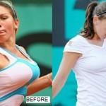 La reducción de pecho de Simona Halep: el sueño de ser la número 1
