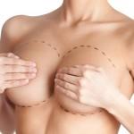 El aumento de pecho recoge el 25% de las cirugías estéticas